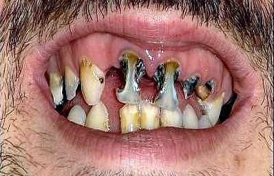 1-teeth
